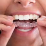 Dental mouthguard clear