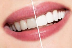 teeth-whitening (1)